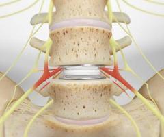 Best Surgeon for Lumbar Arthroplasty San Antonio TX